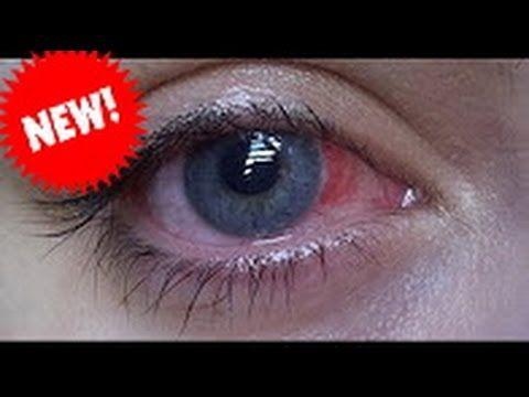 Side Effects Of Lasik Eye Surgery Doctors Won T Tell You Laser Eye Surgery Cost Lasik Eye Surgery Lasik