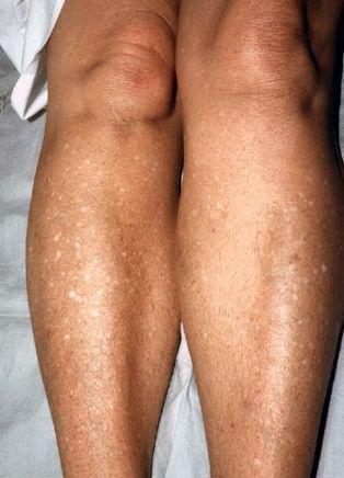 idiopathic guttate hypomelanosis #11