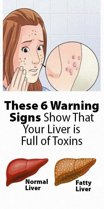 If it's not for the liver, the toxins will take over your body, and you will start feeling sick. Call it the terminator as it transforms toxins into waste and makes your body safely expel through poop or urine. It looks like a harsh and dirty job, but some organ has to do it. That's why it's important for you to do anything in your power to make the job easier. It's how you are going to keep it healthy and little less employed. Remember that it's never too late. Opening your eyes and making yourself start right now will do the trick.
