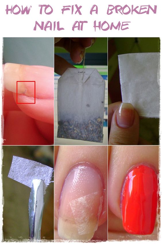 If you have a broken nail there is no need to cut all your nails. Just use the simple method presented here: it just makes wonders. And is so so simple