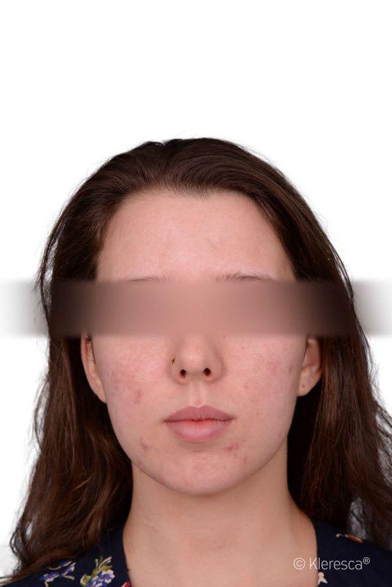 una chica tratada con kleresca para el acné