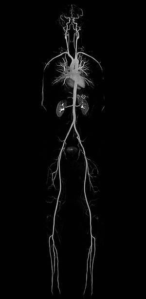 human body and MRI image