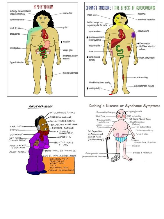 Hypothyroidism vs Cushing's Syndrome