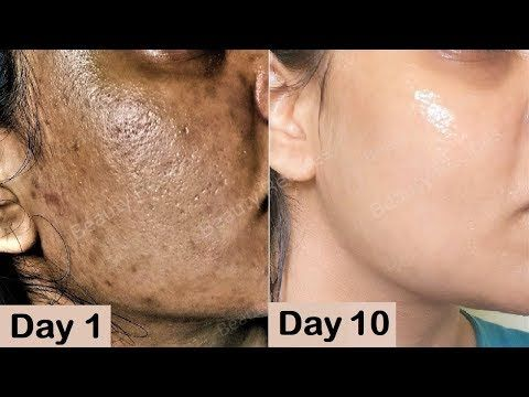 33c30754562cb09a420fb7d7c8d4b000 - How To Get Rid Of Sun Damage Spots On Face
