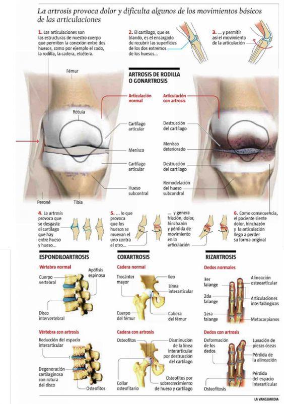 la artrosis es la hermana pobre de las enfermedades   laartrosis.com