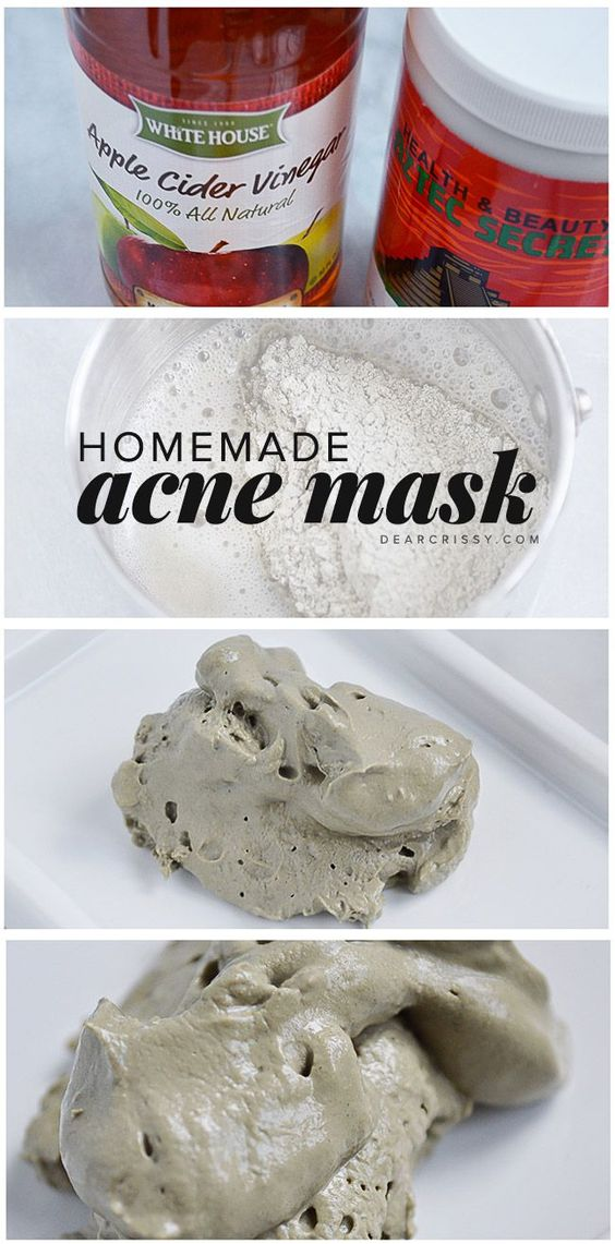 Unclog your pores with this amazing DIY acne mask featuring bentonite clay and apple cider vinegar. This homemade mask and clears blemishes and blackheads.
