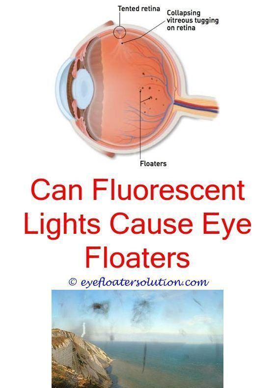 Pin On Eye Floaters Causes