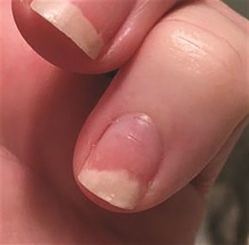 I Injured My Nail Causing It To Lift From The Nail Bed Is The