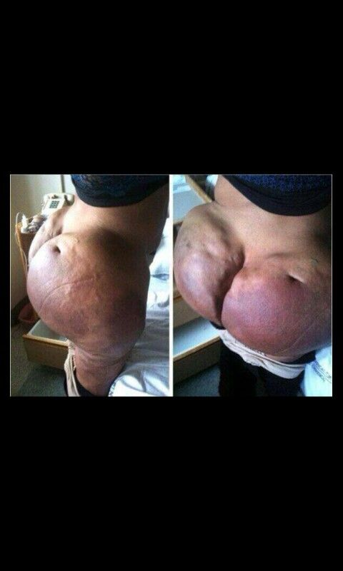 Pictures of boob implants gone wrong