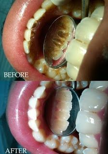 How to Get Rid of Yellow Teeth  Are Your Teeth Really Stained? First, you need to figure out what is causing your yellow teeth. In some cases, your teeth might have a yellow tint to them as your natural color...
