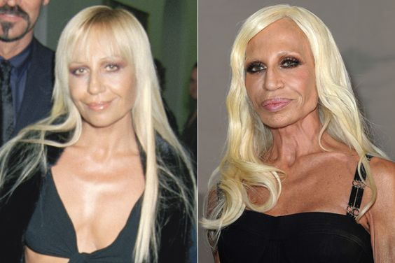 Donatella Versace plastic surgery gone wrong before and after photos...: