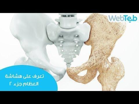 تعرف على هشاشة العظام جزء 2 ويب طب Novelty