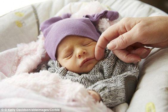 Vàng da sinh lý là điều thường thấy ở trẻ sau sinh