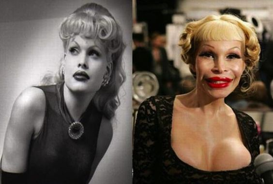Amanda Lepore plastic surgery before and after so incredibly sad