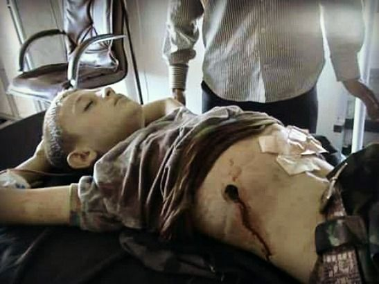 Vanessa Beeley   Western-backed rebels are targeting Syrian children, attacking future generations.