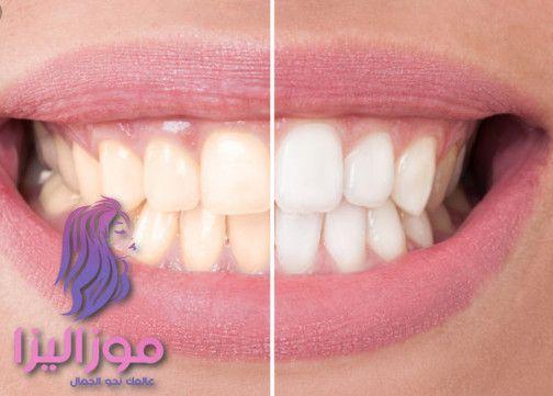 خلطة تبيض الاسنان بسرعة وفعالية والطريقة مضمونة Convenience Store Products Convenience Store Convenience