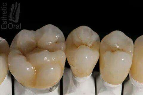 Molar Dental Advanced Ceremic In 2020 Dental Anatomy Dental Teeth Dental Ceramics