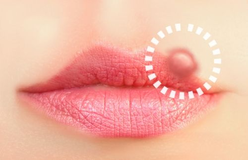 Natural Solutions For Cold Sores