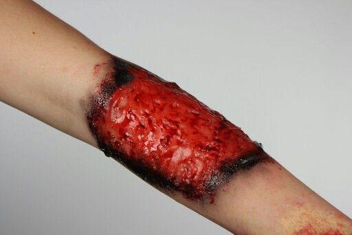 Burn wound using gelatin and liquid scab