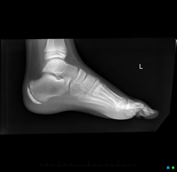 Sever's disease shown here with the dense calcaneal ...