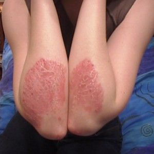 Best Diets to Treat Psoriasis