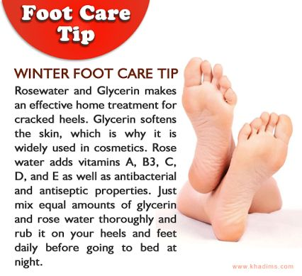 khadim's-foot-care-tip.png (426×389)