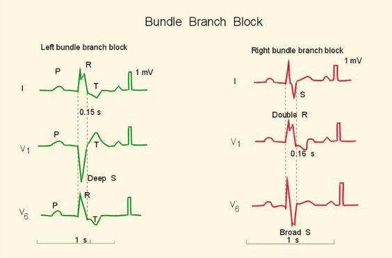 Bundle Branch Block:
