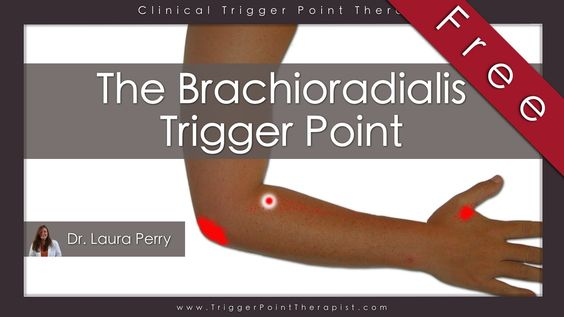 The Brachioradialis Trigger Point