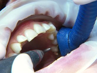 Haben Sie ein gutes Gefühl? Wenn Sie bei Ihren Patienten zwar sterilisierte Kanülen einsetzen, der vorherige Patient aber eine tiefe Karies ausgebohrt bekam und dabei auch noch ordentlich Blut floss?  Lesen Sie mehr unter: http://www.duerrdental.com/de/aktuelles/neuigkeiten/news-singleview/browse/weiter/kategorie/praxis-tipp/details/haben-sie-ein-gutes-gefuehl-151/853/ (rf)