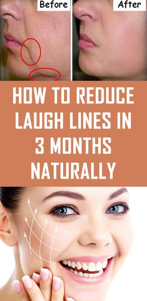 How To Reduce Laugh Lines In 3 Months Naturally Laugh Lines Natural Skin Care Skin Care Tips