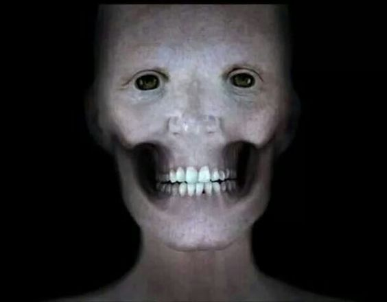 This is what your face would look like without muscles.