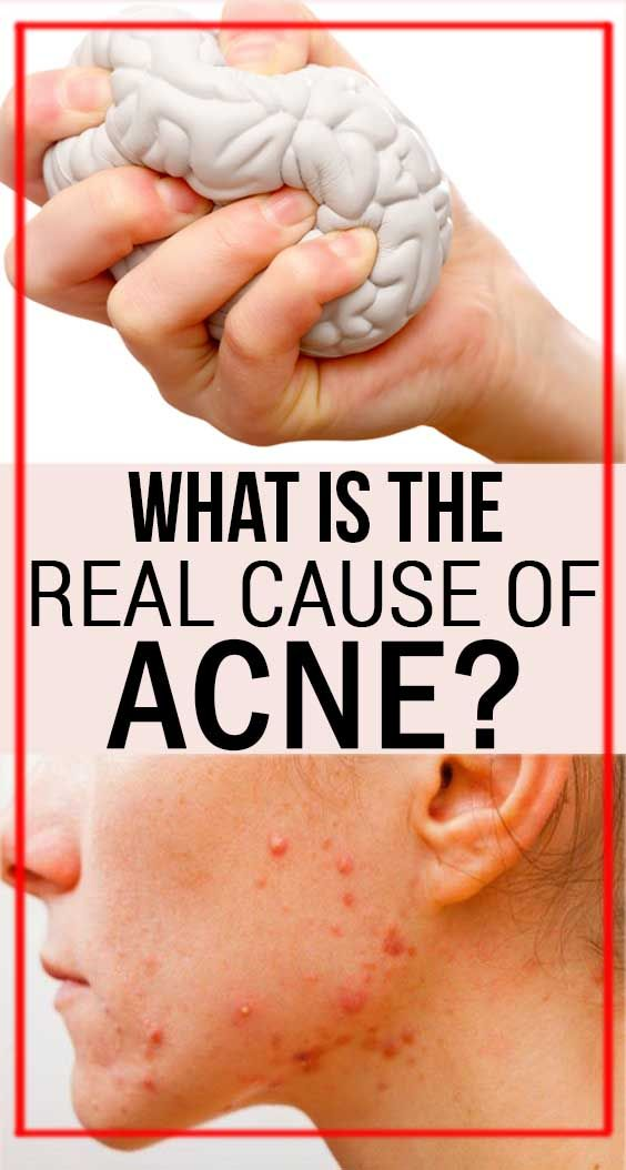 How To Get Rid Of Acne While On Steroids