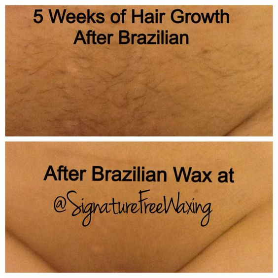 Full Brazilian Wax Photos Before And After