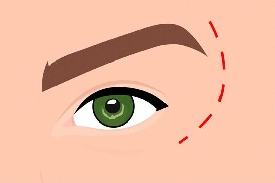 """But, some women choose blepharoplasty, or eyelid surgery, to look younger and more refreshed.    """"Some people have heavy eyebrows that sit low,"""" says Dr. Edwards. """"If they put their hands on their forehead and lifted it up a little — we're talking 5 millimeters — they look less tired."""" A well-done blepharoplasty, he says, can create a rejuvenated look instead of a """"done"""" one.    As for a less invasive way to create a lifted look, you guessed it: Botox above the brows."""