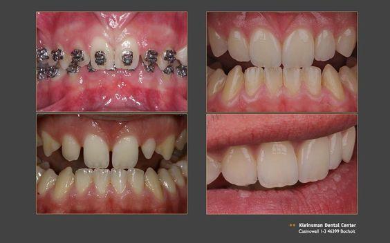 #orthodontics #zahnarzt #kleinsman #kleinsmandentalcenter #kleinsmanvarzideh #brackets #veneers #zahnlücke #dental #zähne #vorhernachher #teeth #dentalcase by kleinsmandentalcenter Our Dental Veneers Page: http://www.lagunavistadental.com/services/cosmetic-dentistry/veneers/ Other Cosmetic Dentistry services we offer: http://www.lagunavistadental.com/services/cosmetic-dentistry/ Google My Business: https://plus.google.com/LagunaVistaDentalElkGrove/about Our Yelp Page…
