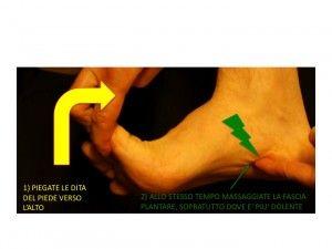 Foot Surgery Center | Fascite plantare