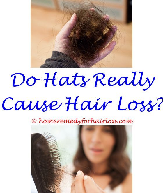 Pin On Hair Loss Remedy