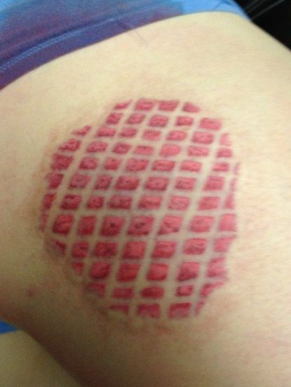 roller derby fishnet burn tattoo sick of getting scars that faded so made one official. Black Bedroom Furniture Sets. Home Design Ideas