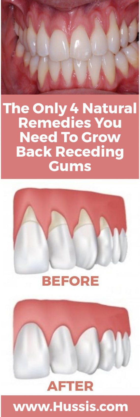 There are a lot of reasons why gums recede and it can become quite a health problem if this happens. If you are experiencing receding gums then you have found a great article to read. Go to the Next Page find 4 of the best home natural remedies to help grow back your receding gums. Your gums …