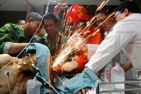Chinese Migrant worker has impaled steel rebar removed from his head