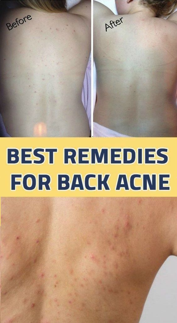 Sea Salt Acne Soap Cleanser Back Acne Remedies Body Acne Natural Acne Treatment