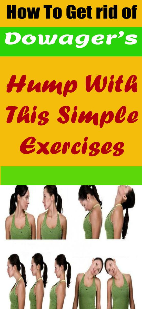 392264a11395b73439402cc8665bb514 - How To Get Rid Of Dowager S Hump Exercises