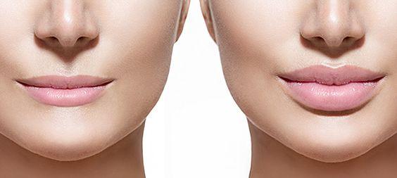 Lip Shaping -lip augmentation, lip augmentation uk, lip augmentation cost, lip enhancement, lip enhancement uk, lip enhancement cost. http://www.britishcosmeticclinic.co.uk/lip-shaping/