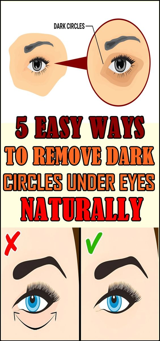 Nobody likes to look as if they've been socked in the eye. While a bad case of periorbital dark circles (PDC) – a.k.a., dark circles under eyes – will most likely not produce such a dramatic effect, they can cause a bit of embarrassment and self-consciousness all the same...