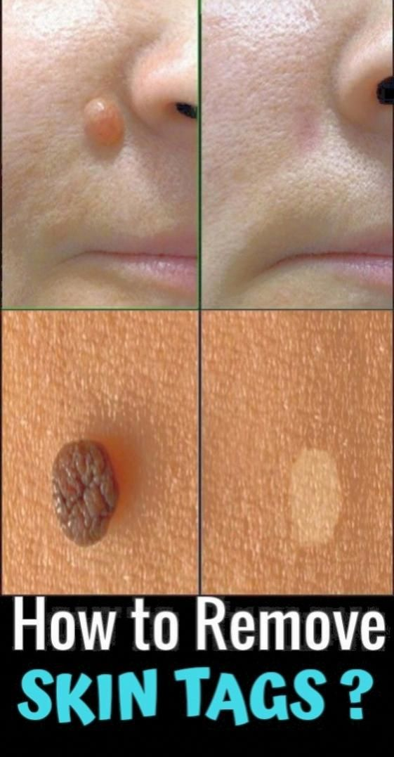 Quick Easy Cheap Home Remedy To Get Rid Of Skin Tags Skin