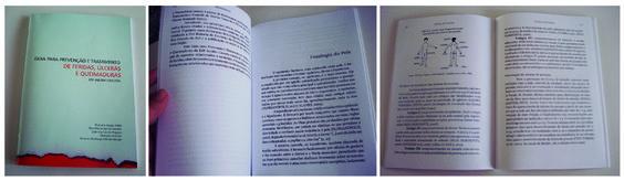 Guia para prevenção e tratamento de feridas, úlceras e queimaduras - ESF Jardim Cascata.  Capa e editoração eletrônica: Denise Henderson. Out / 2013.
