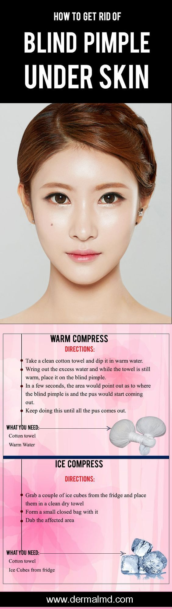 How To Make A Warm Compress : compress, Compress, Compress,, Easily, Blind, Pimples, Which, Present, Under, Sk…, Pimple,, Nose,