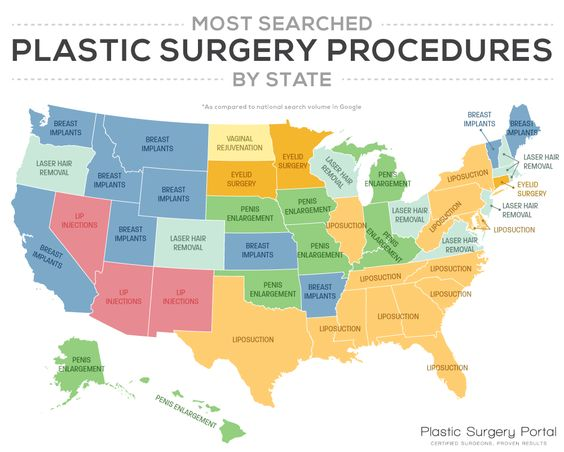 These Are The Most Searched Plastic Surgery Procedures By State - http://viralfeels.com/these-are-the-most-searched-plastic-surgery-procedures-by-state/