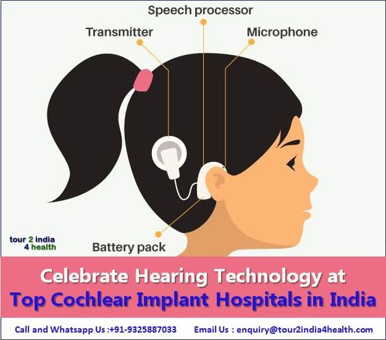Top Cochlear Implant Hospitals in India