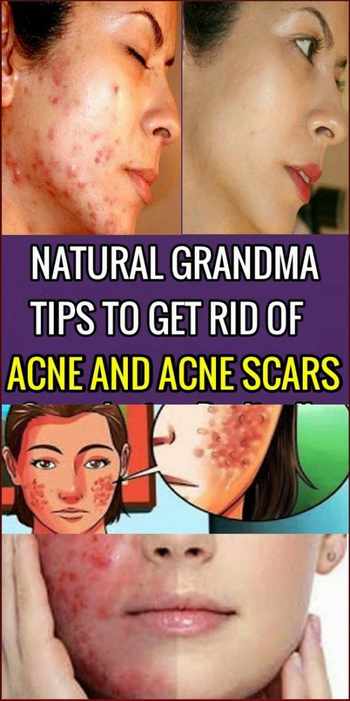 Pin On Beauty And Skin Care